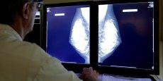 Chaque année, le cancer du sein touche plus de 50.000 Françaises.