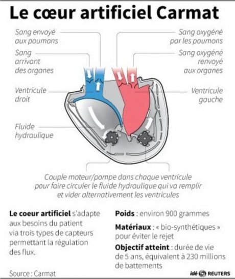 Le coeur artificiel carmat