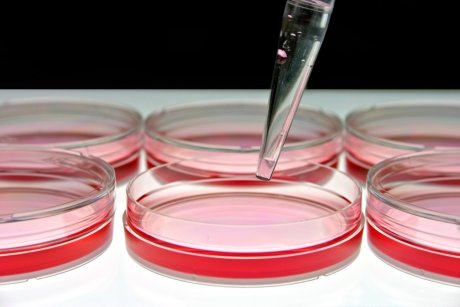 Labo in vitro