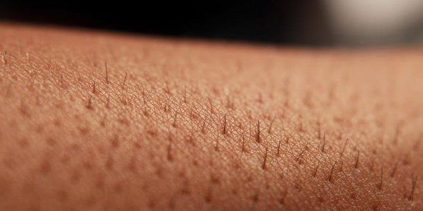 Grâce à un véritable catalogue de cellule, LabSkin peut créer à la demande tout type de peaux humaines.