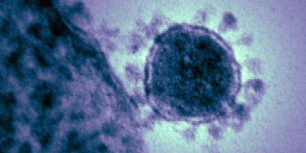 La protéine S des coronavirus leur donne leur aspect si particulier en microscopie (ici le MERS-CoV).  National Institute of Allergy and Infectious Diseases (NIAID)