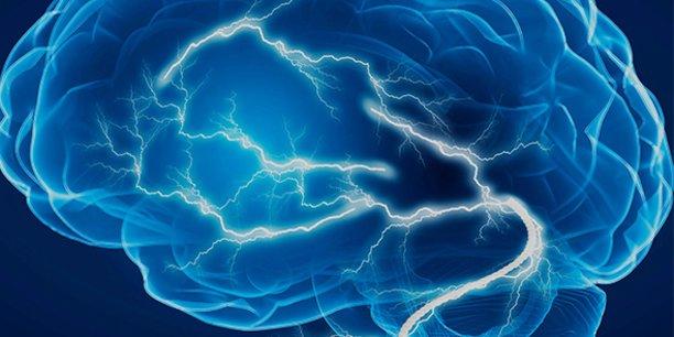 La technologie photo-médicale non-invasive ciblant le cerveau et l'intestin conçue par REGEnLIFE se traduit par l'émission d'ondes infrarouges combinées au niveau du crâne et de l'abdomen, grâce à un casque et une ceinture.