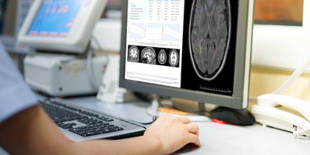 L'outil développé par Pixyl avait déjà remporté le challenge IA des Journées Francophones de Radiologie 2019, où la medtech grenobloise, associée à des partenaires, avait proposé la meilleure prédiction de handicap à deux ans dans le cadre de la sclérose en plaques, en combinant l'expertise des radiologues avec de l'IA.