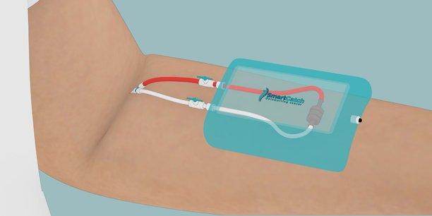 La startup SmartCatch a mis au point un piège 3D pour isoler certaines cellules tumorales.