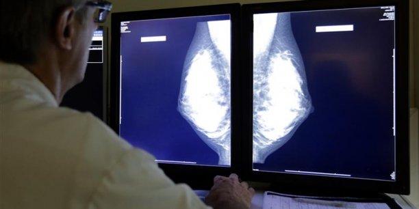 En France, près de 12.000 femmes meurent chaque année d'un cancer du sein, selon l'institut national du cancer.