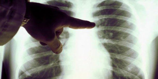 La startup française Ose Pharma, spécialisée en immunothérapie contre le cancer avancé du poumon, a levé 21,1 millions d'euros en Bourse en mars dernier.