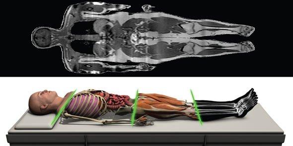 Anatascope développe des clones numériques en 3D de patients à destination des professionnels de santé,