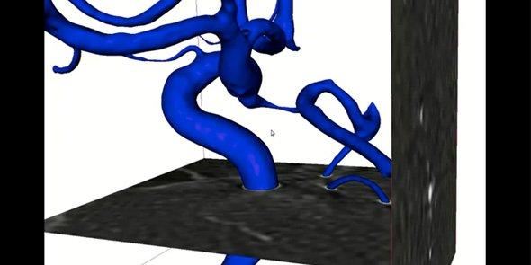 Le logiciel de Sim&Cure est destiné à sécuriser la pose des stents lors du traitement endovasculaire de l'anévrisme cérébral