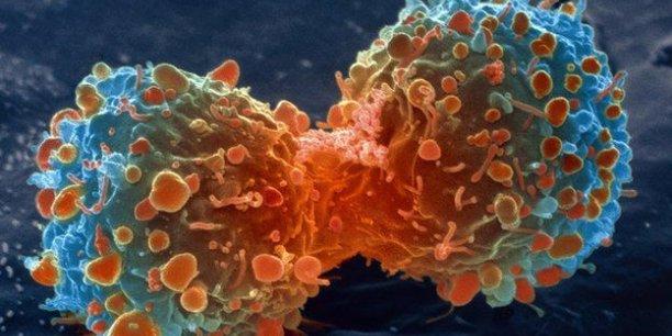 Plusieurs dizaines de résultats d'études cliniques entre autres ont été présentés lors de l'ASCO 2017, plus grand congrès de cancérologie au monde.