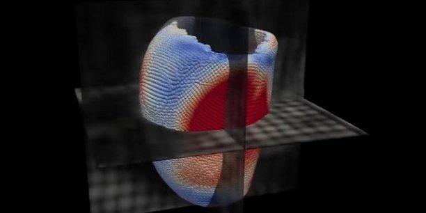 Le logiciel permet de créer des coeurs virtuels en trois dimensions pour anticiper les risques de décès.