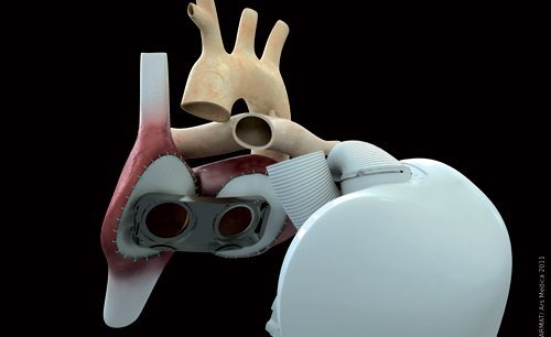 Stéphane Piat espère ainsi que son cœur artificiel connaîtra une évolution aussi spectaculaire que celle des pacemakers.