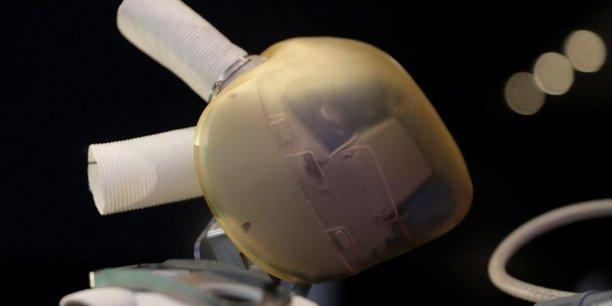 Cœur artificiel : Carmat s'associe à une société d'impression 3D