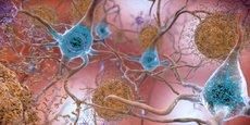 Plaques amyloïdes et protéines Tau dans le cerveau.  NIH Image Gallery, CC BY-NC