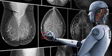 Les réseaux neuronaux développés par Therapixel repèrent les anomalies sur les radiographies.