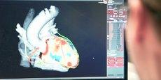La visualisation en détail du coeur par l'application inHeart (notre photo).