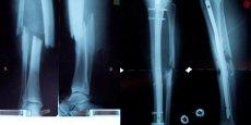Rayon-X d'un avant bras. L'innovation de Bone Therapeutics permet de traiter les fractures sévères, dites à haute énergie.