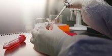 Coronavirus: des chercheurs chinois disent avoir mis au point un traitement efficace