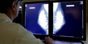 Survie en hausse pour les trois cancers les plus frequents en france