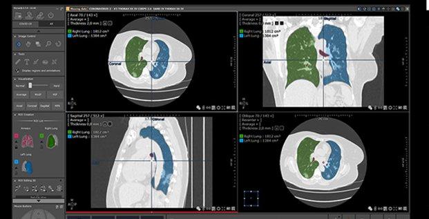 Intrasense (Montpellier) met à disposition son nouveau protocole de visualisation scanner, dédié au Covid-19